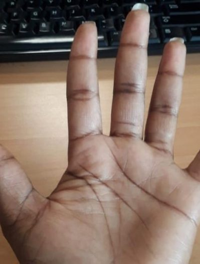 How finger length could reveal your sexuality
